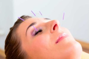 Cosmetic acupuncture by Patricia McNab