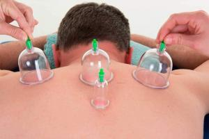 Cupping therapy by Patricia McNab